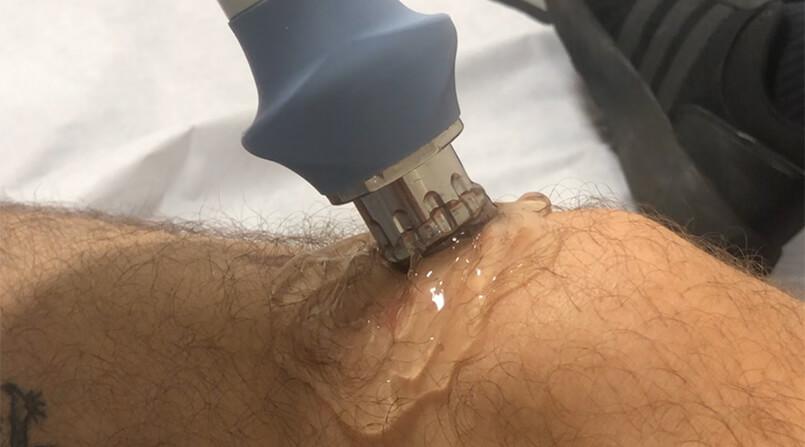 como funciona o tratamento por ondas de choque