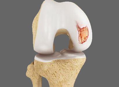 centro de excelência em cartilagem