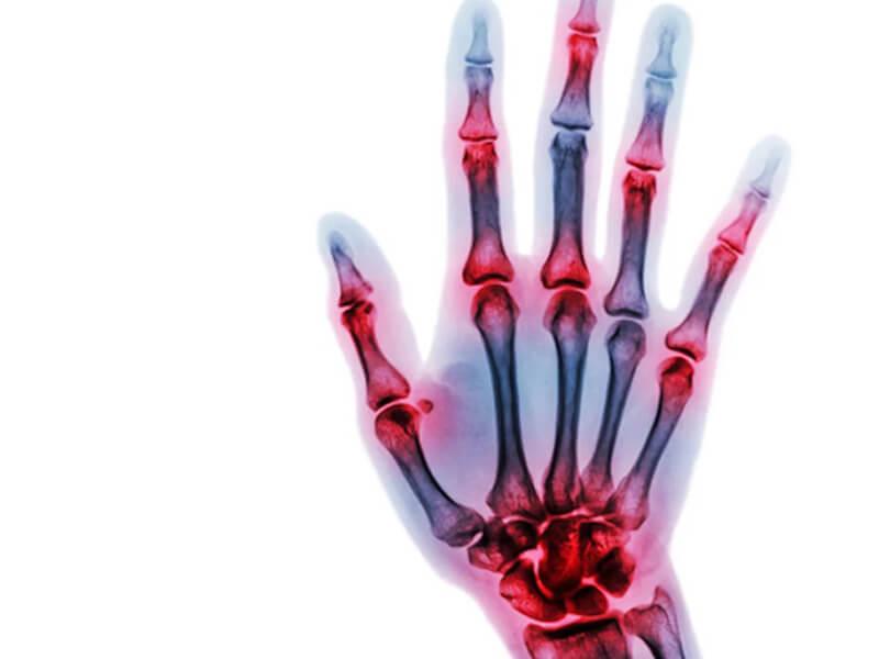 Reumatologia